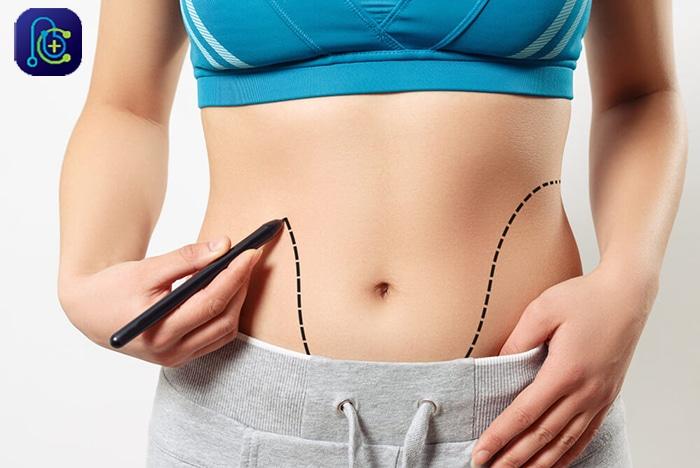 جراحی زیبایی شکم و یا ابدومینوپلاستی