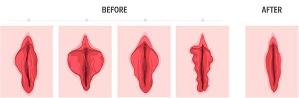 قبل و بعد از لابیاپلاستی