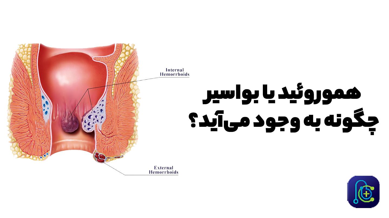 سرطان روده و بواسیر