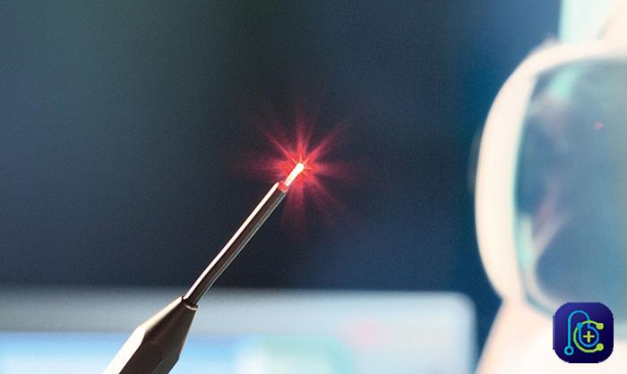 جراحی کیست مویی با استفاده از لیزر
