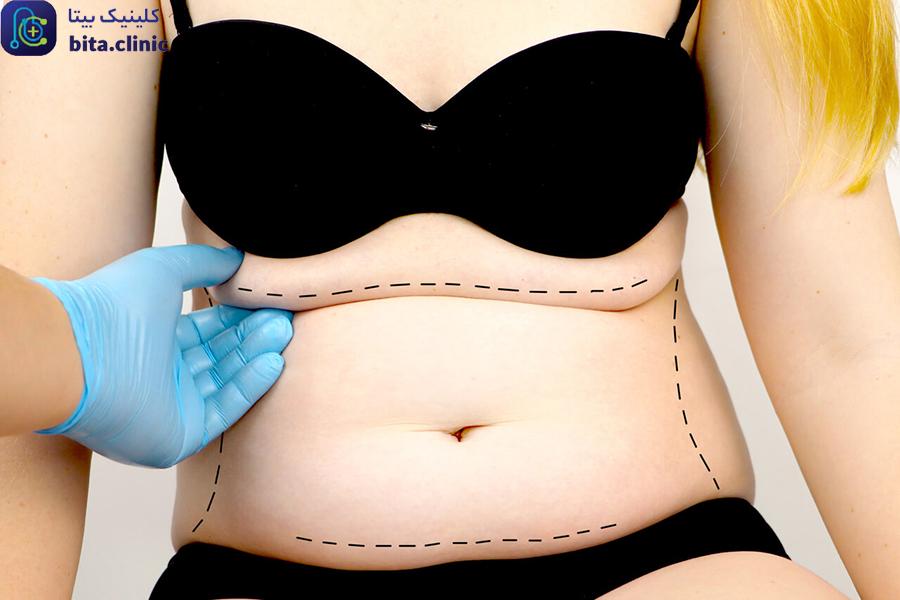 [تصویر:  Remove-fat-from-the-abdomen-1.jpg]