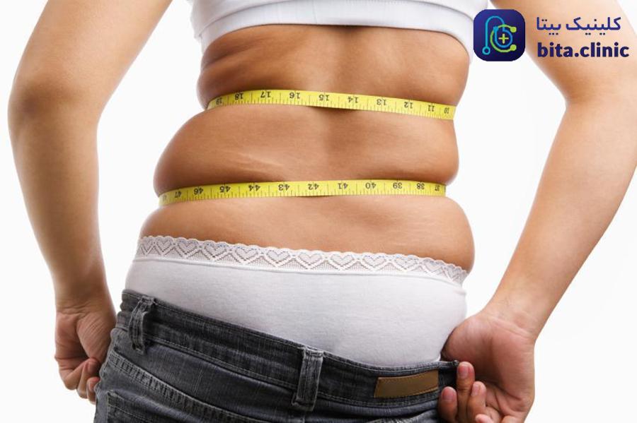 هزینه جراحی شکم چقدر است؟