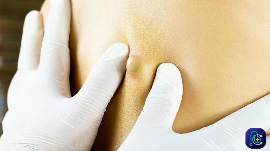 درمان کیست مویی بدون جراحی