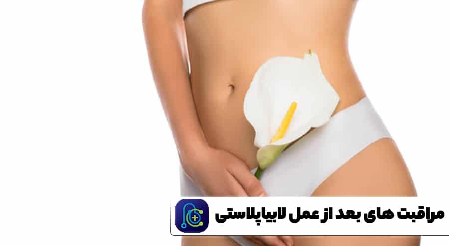 مراقبت های بعد از عمل لابیاپلاستی
