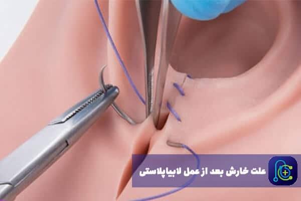 چرا خون خارش بعد از عمل لابیا اتفاق میافتد؟