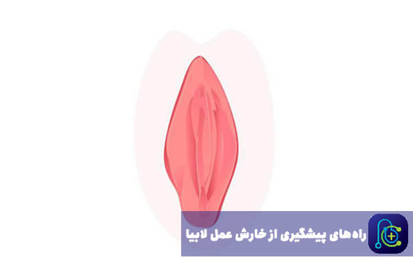 راههای کاهش خارش در عمل لابیاپلاستی