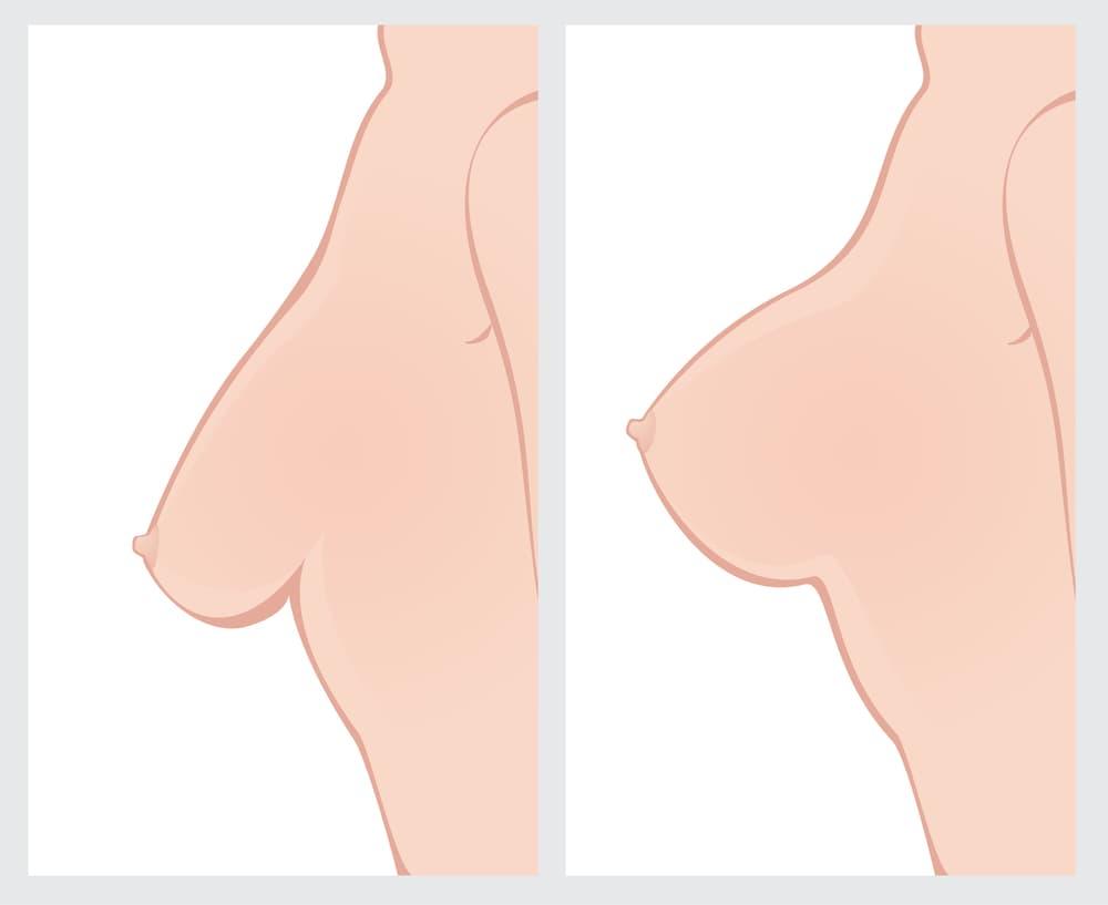عمل زیبایی لیفت پستان